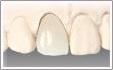 前歯の硬質レジン前装冠