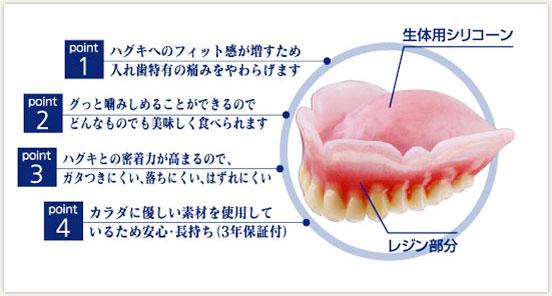 生体用シリコン裏装義歯
