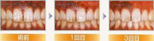 歯ぐきのクリーニング(レーザークリーニング)